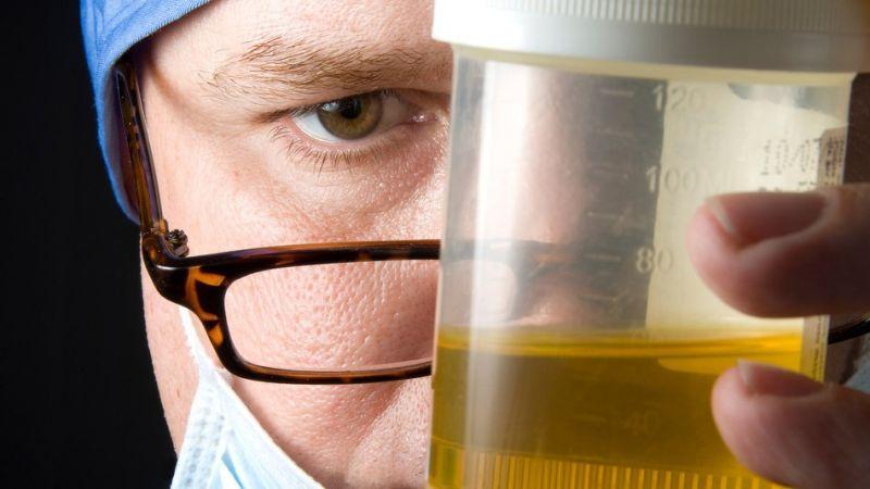 Pemeriksaan urine