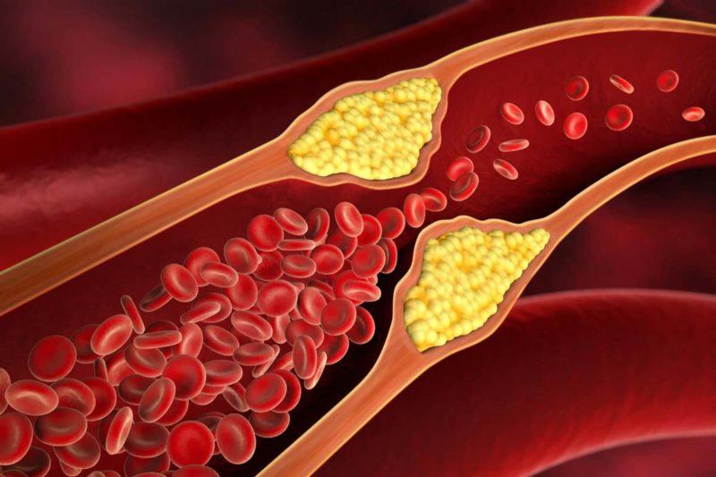 Menurunkan Kadar Kolesterol pada Darah